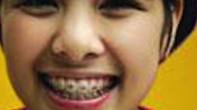 Los brackets mortales están de moda en Tailandia