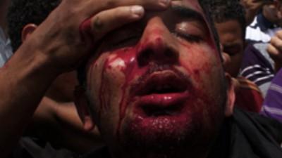 Peleando sucio con las multitudes en El Cairo