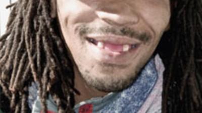 """Sorriam e digam """"faltam-me dentes"""""""