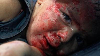 Siria - Hospital de campaña de Alepo