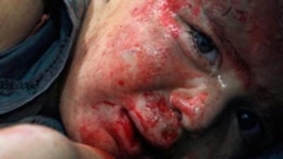 Síria: Hospital de Aleppo