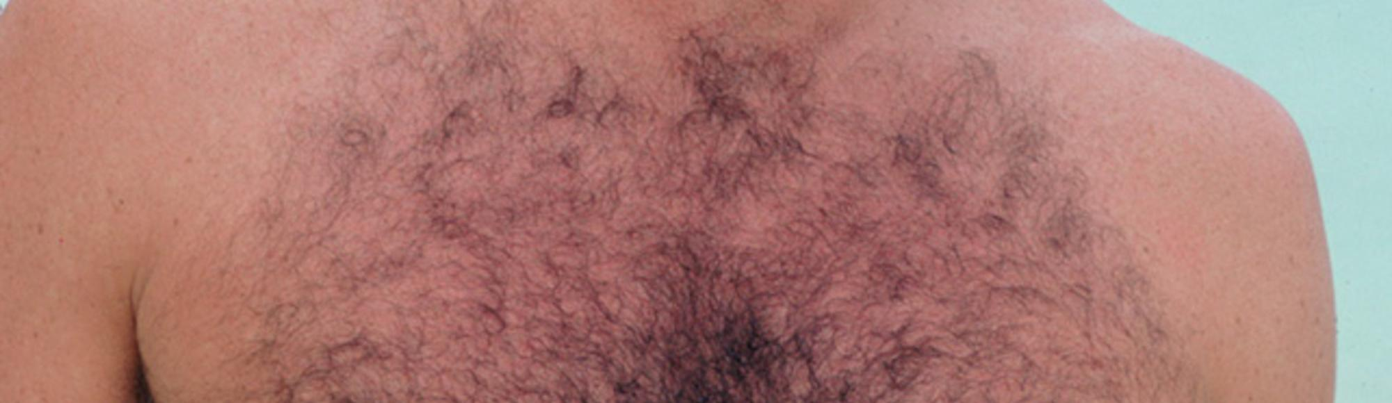 Why I Love Hairy Men
