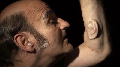Stelarc: de man met drie oren