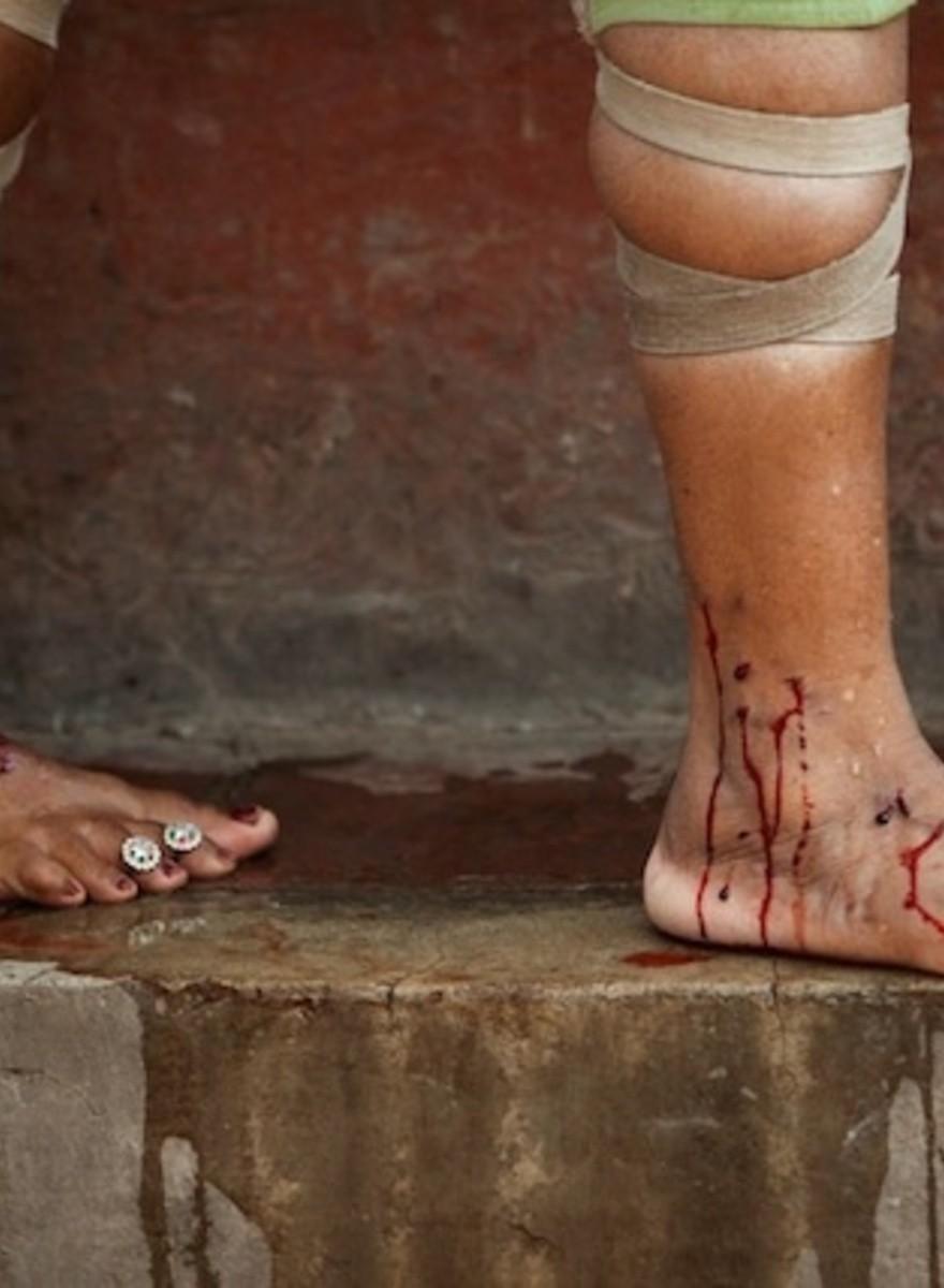 Estos doctores en India hacen sangrías para curar