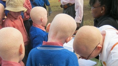 The Fight to Stop Tanzania's Witch Doctors Butchering Albino People
