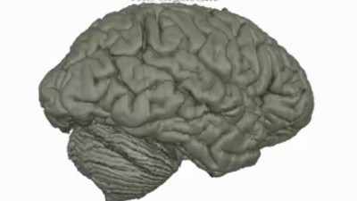Canadian Scientists Built a Virtual Map of the Human Brain