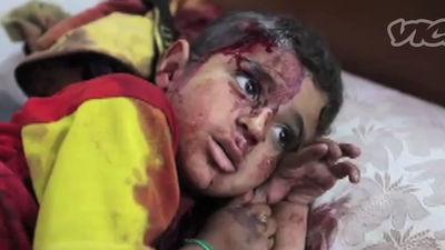 Archivo VICE: Siria - Hospital de campaña de Al Qusayr