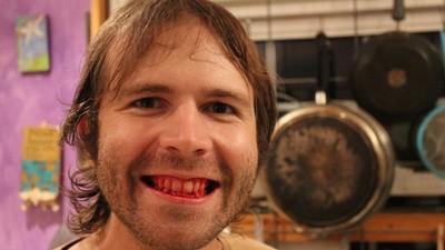 Deze man eet al vijf jaar uitsluitend rauw vlees