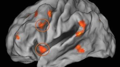 Crecer siendo pobre puede dañar tu cerebro