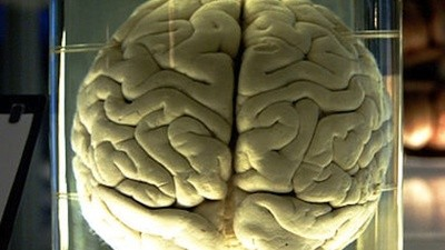 Sorting Out a 150-Year-Old Brain-in-Jar Mix-Up