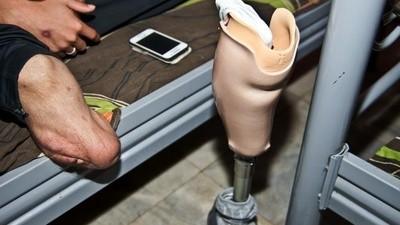 Verstümmelte Jugendliche aus Syrien bekommen neue Beine