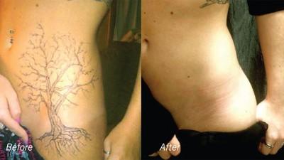 Cancellare tatuaggi con il laser è un gran business