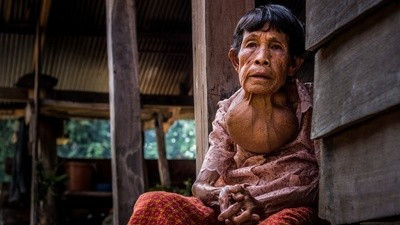 A Contaminated Lake Is Poisoning a Thai Village
