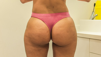 Why Are So Many More British Women Getting Butt Implants?