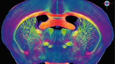 Je kunt je hersenen uploaden in een computer, EN NU?!