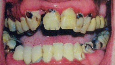 Meet the Dentist Who Will Fix Your Mouth After Meth Ruins It