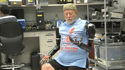 Les Baugh kann seine Armprothesen per Gedankenkraft bewegen