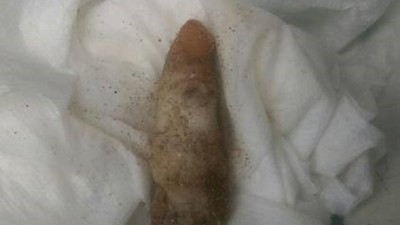 A Guy Found a Severed Finger That Turned Out to be Coral