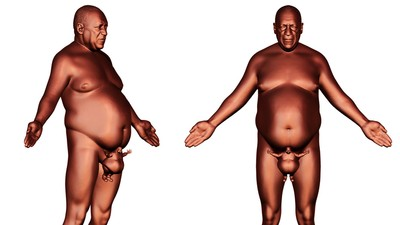Bill Cosby Nude Protest Statue Proposed by Teenage Sculpture Prodigy