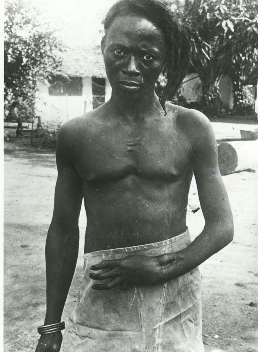 Fotos, die den Schrecken des Kolonialismus im Kongo zeigen