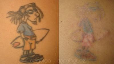 Esta mujer lleva 25 años borrando tatuajes con láser