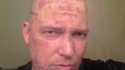Hostgator Dotcom, the Man Covered in Porn URLs, Is Getting His Face Back Thanks to VICE Readers