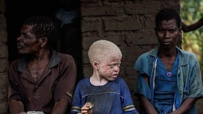 Un hombre fue arrestado en Tanzania cuando trataba de vender a su sobrina albina para hacer santería