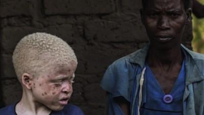 Arrestado en Tanzania cuando trataba de vender a su sobrina albina para hacer santería