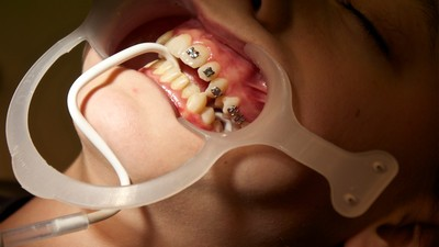 The Worst Things That Have Ever Happened at the Dentist