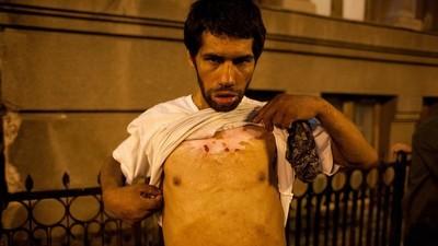 I tossici rom di Bucarest vengono letteralmente lasciati marcire
