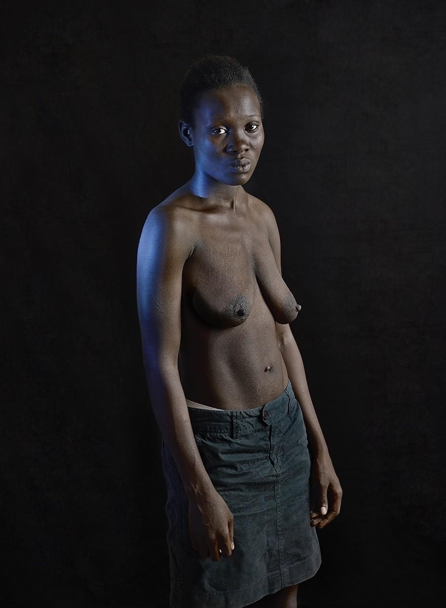 Donne mutilate e corpi raggrinziti