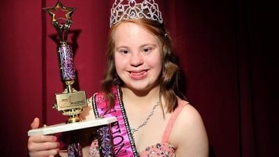 Miss Amazing, um concurso de talentos especial