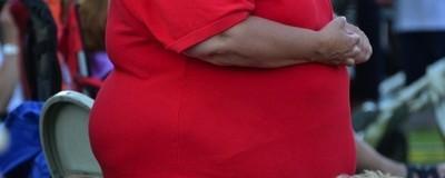 ¿La obesidad es un problema físico o sicológico?