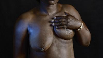 Mujeres mutiladas y cuerpos heridos
