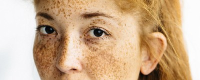 Documenting Gingers of Colour