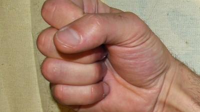 'Death Grip Syndrome': Internet Myth or Penis Ruiner?