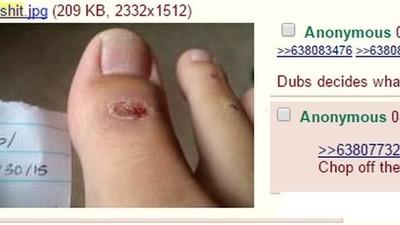 4chan hat einen User anscheinend dazu gebracht, sich einen Teil der großen Zehe abzuhacken