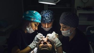 El turismo de trasplantes de pelo en Turquía