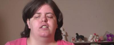 Esta mujer se echó líquido destapacaños en los ojos porque quería ser ciega