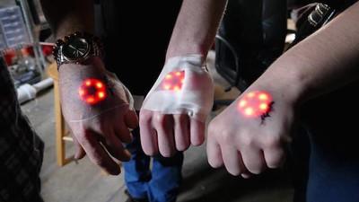 Erleuchtete Cyborgs: Biohacker schieben sich Blink-Implantate unter die Haut