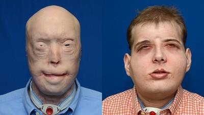 Feuerwehrmann erhält weltweit aufwändigste Gesichtstransplantation aller Zeiten