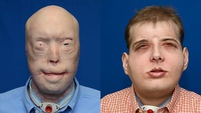 Un pompier mutilat de-un incendiu a primit o față nouă