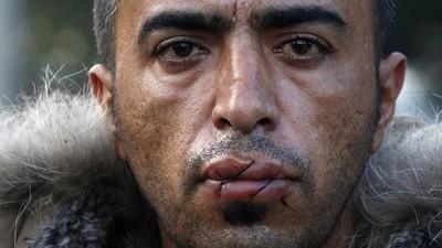 Iranische Demonstranten haben sich an der griechisch-mazedonischen Grenze die Münder zugenäht