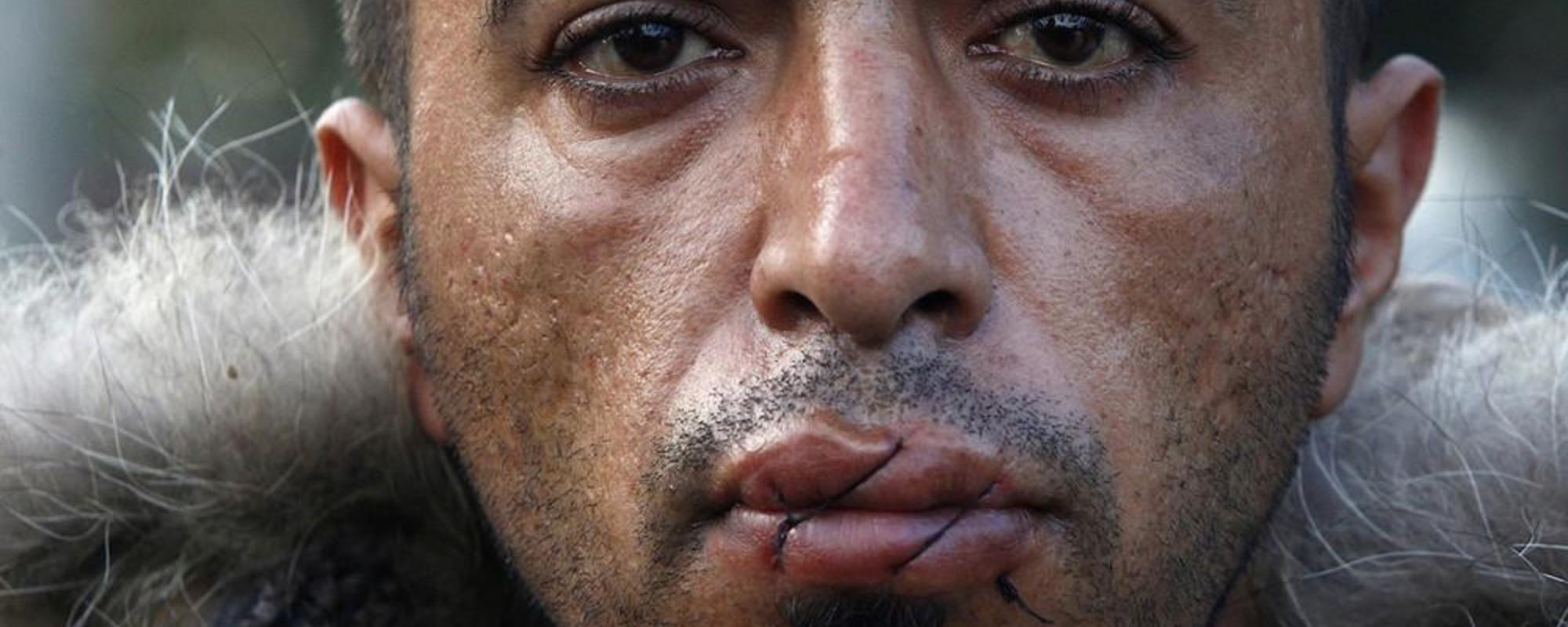 Portrætter af de iranske demonstranter, der syede deres munde sammen ved den græsk-makedonske grænse