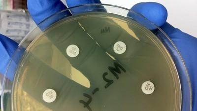 Unsere stärksten Antibiotika wirken nicht mehr