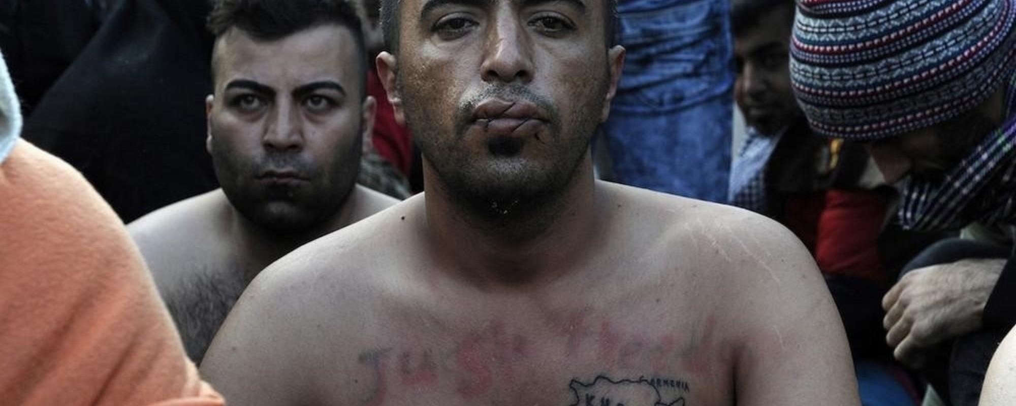 Fotografii cu iranieni care și-au cusut gurile ca să protesteze pentru refugiați