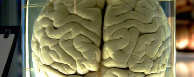 An Indiana Man Has Been Convicted of Stealing Brains from a Former Hospital for the Insane