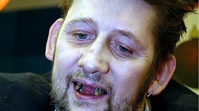 The Feel Good Christmas Movie of the Year Features Close Ups of Shane MacGowan's Dental Surgery