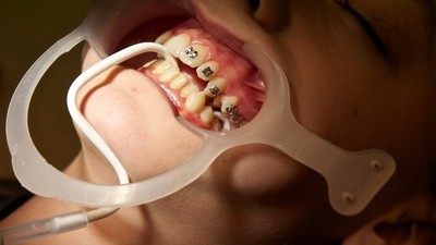 The Dentist Who Injected Semen into Patients' Mouths Tried to Reopen a Clinic in Belize