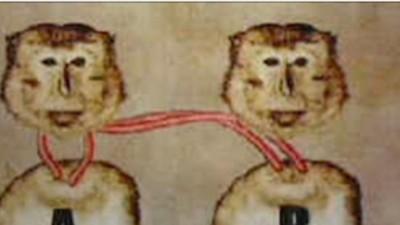 Haben Chirurgen wirklich gerade einen Affenkopf transplantiert?